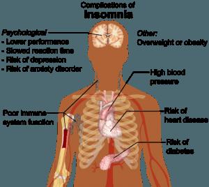 Insomnia  - Classic Symptoms an treatment