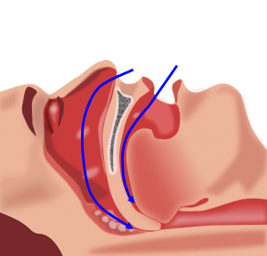 Sleep Apnea - Types and Treatment