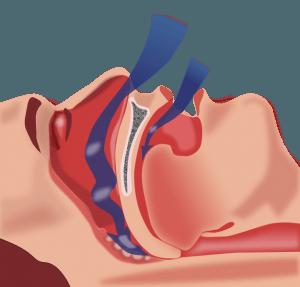 Sleep Apnea and Sleep